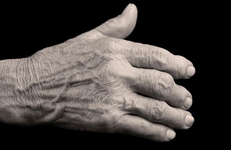 Hand-symptoms_deformity