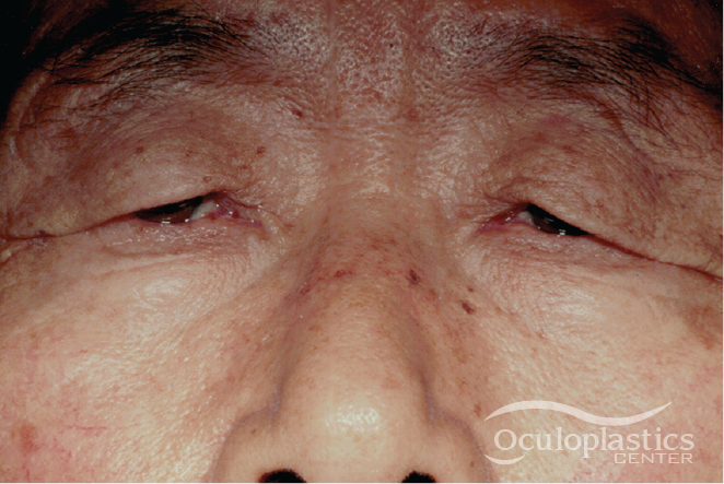 Oculoplastic Center logo, women's eyes, before and after