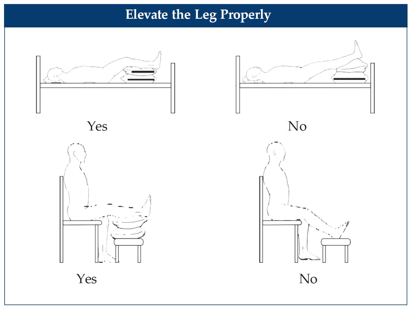 elevate the leg properly