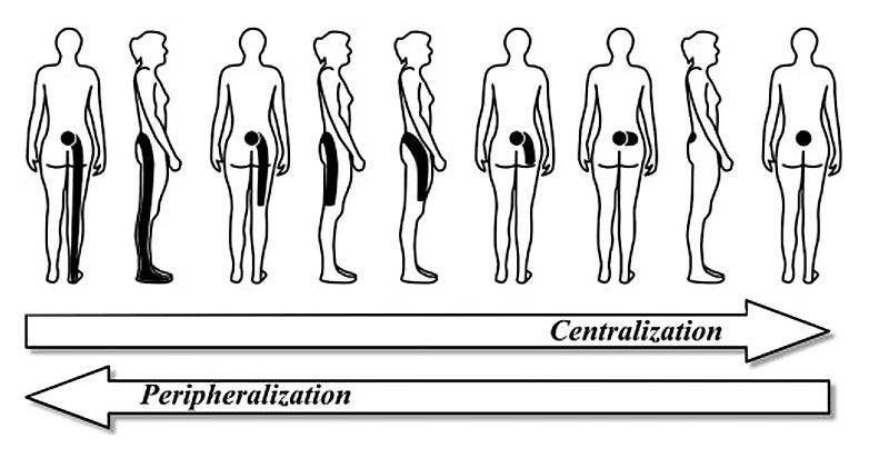 Lumbar Spine Centralization