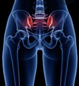 Pain due to Sacroiliac Joints