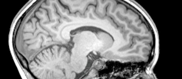 Concussion Management for New Grad Clinicians