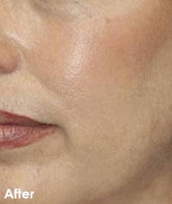 Skin Aesthetics