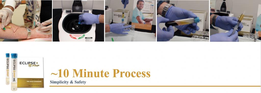 PRP 10 minute process