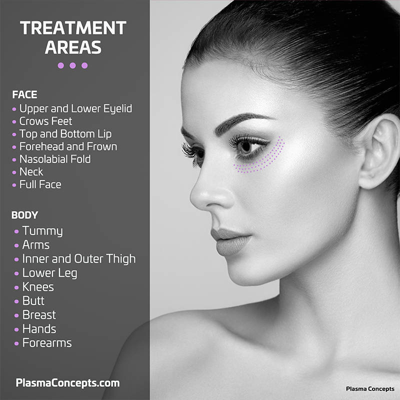 Plasma Concepts - Treatment Areas-800x