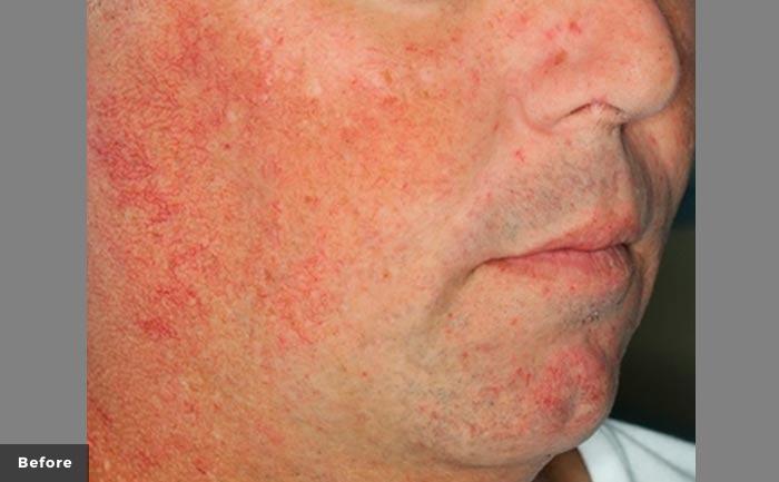 excelvplus-Vascular-Lesions-Telangiectasias-Ross-P1-before