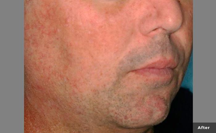 excelvplus-Vascular-Lesions-Telangiectasias-Ross-P1-post2tx