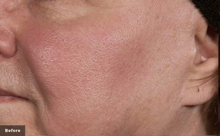 excelvplus-vascular-lesions-face-Stankiewicz-P2-before