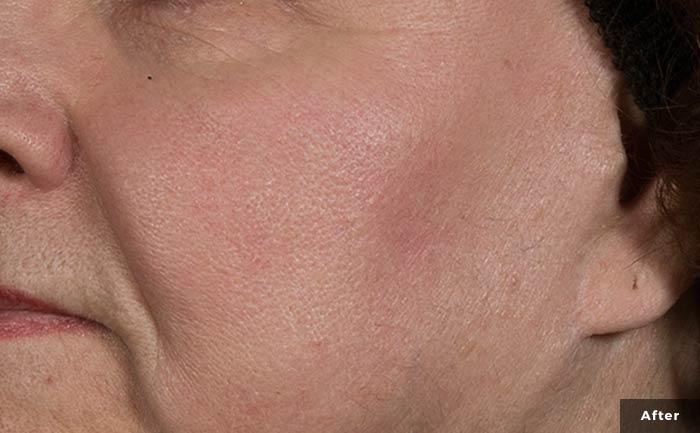 excelvplus-vascular-lesions-face-Stankiewicz-P2-post3tx