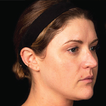 platelet-rich-plasma-dermatology-before