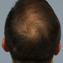 prp-hair-loss-after