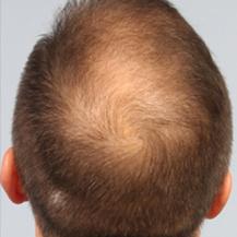 prp-hair-loss-before