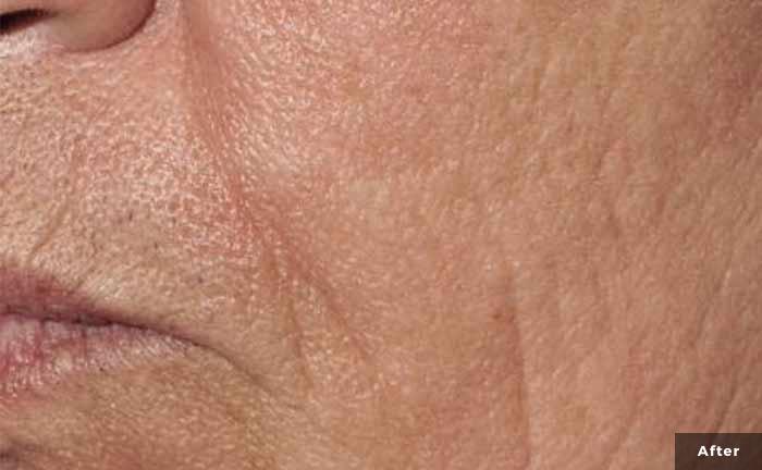 xeo-wrinkles-pearlfractional-Barry-DiBernardo-MD-P1-after1Tx_0