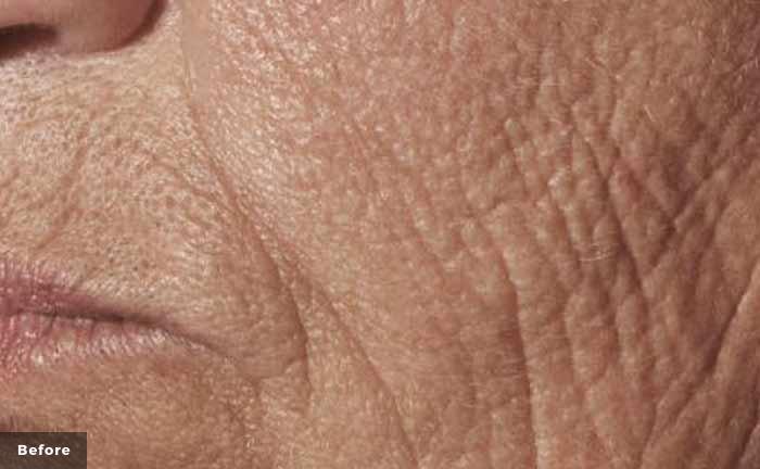 xeo-wrinkles-pearlfractional-Barry-DiBernardo-MD-P1-before_0