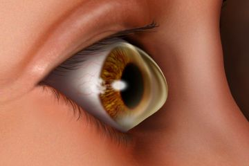 keratoconus eye