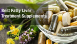 The Best Fatty Liver Treatment Supplements