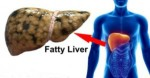 Fatty Liver Causes You Should Know
