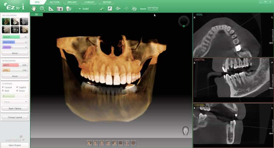 The Next Paradigm Shift in Dentistry