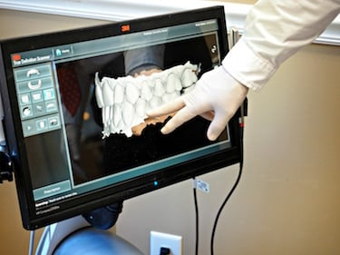 Fort Myers Crowns: CEREC Technology