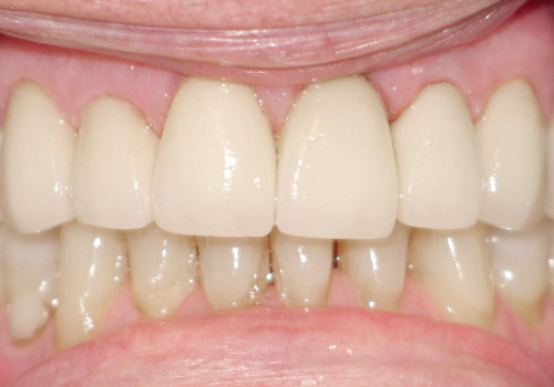 After smile reconstruction photo