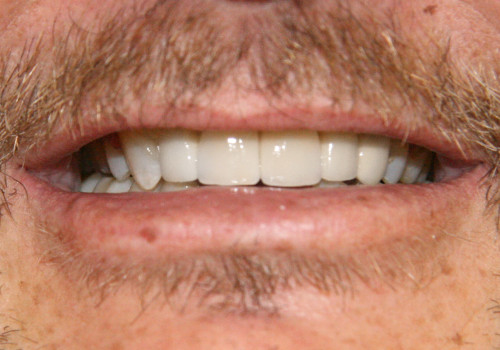 Close up of smile after implants and crowns