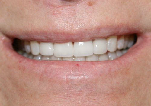 Smile Close up after Crowns and Veneers