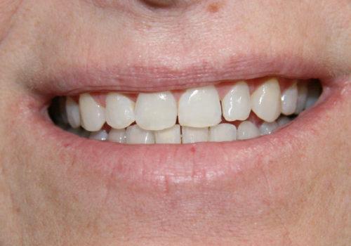 Closeup photo of short gapped teeth before cosmetics