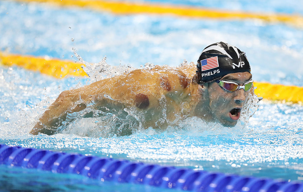 What Is Cupping Therapy, and Why Does Michael Phelps Swear By It?