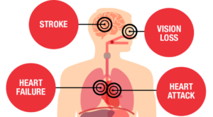 blood pressure side effects