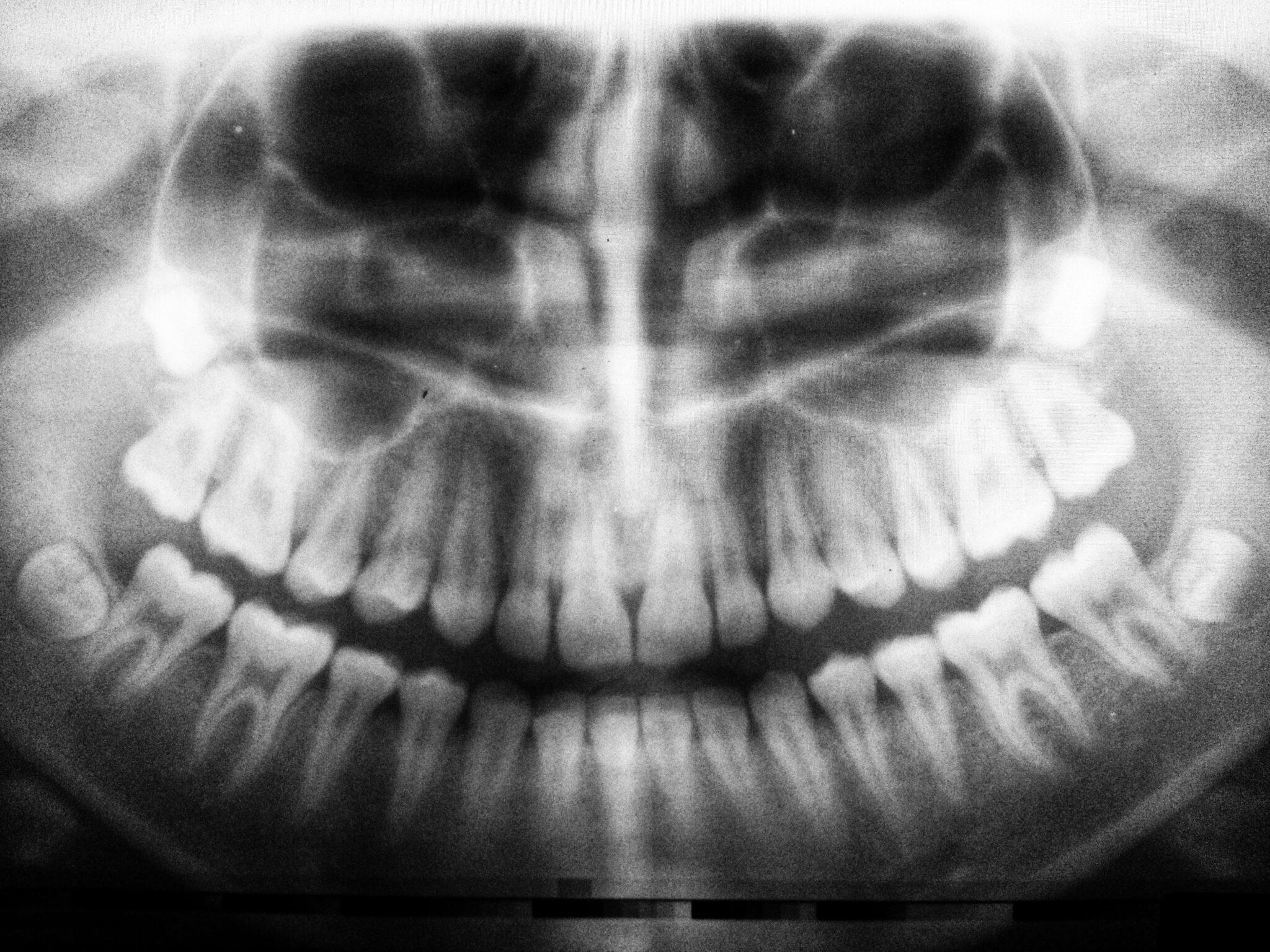Dental Compounding