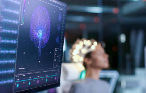 Brain imaging software on a computer monitor