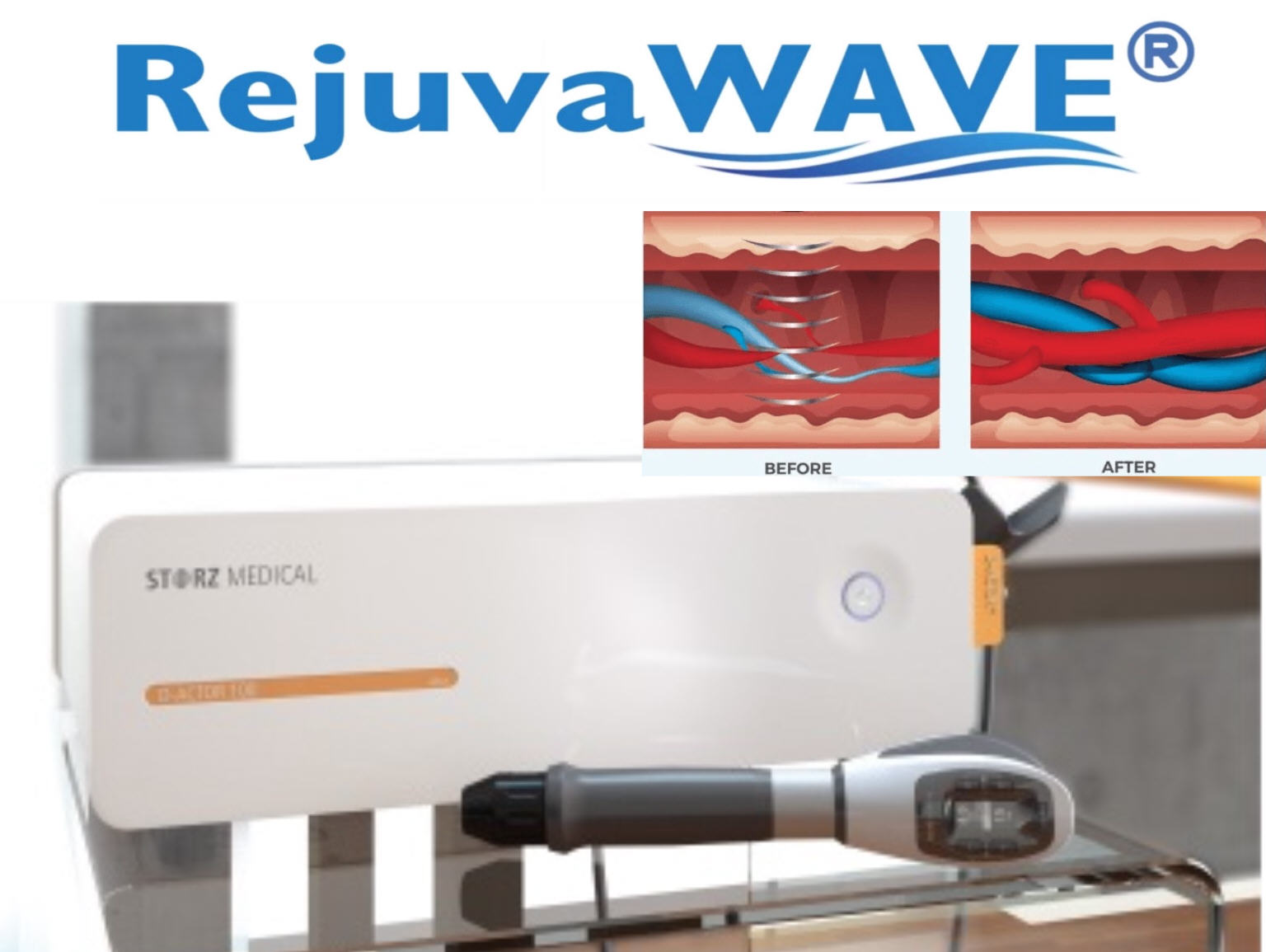 RejuvaWAVE ED Shockwave EPAT therapy Erectile Dysfunction Cure first Palm Beach Boca Miami before Gainswave or Epuulse