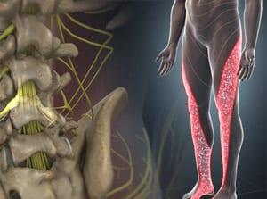 sciatica lumbar radiculopathy