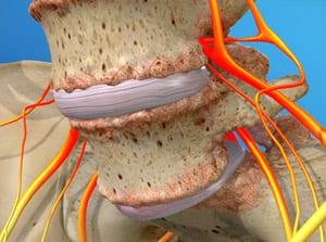 spondylolisthesis treatment