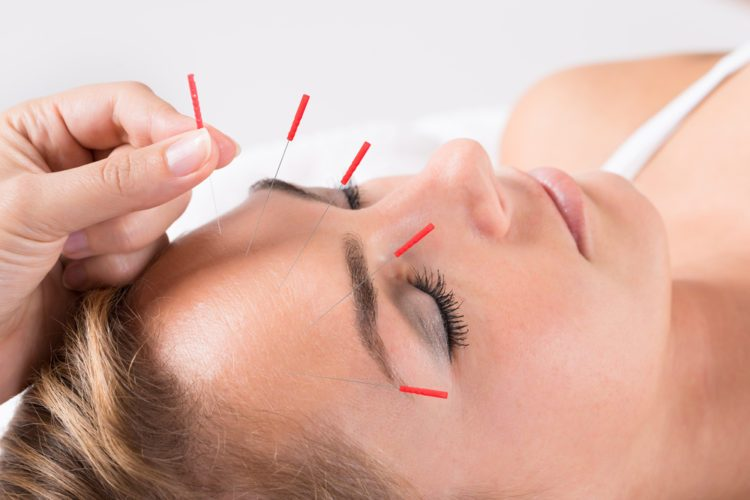 Acupuncture Burlington