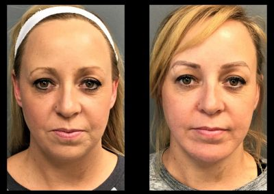 Chin Augmentation and Liposuction to the Neck