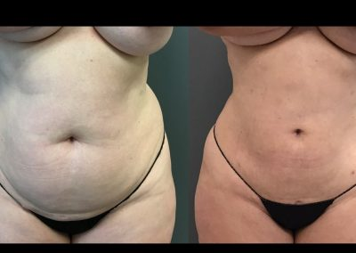 Liposuction to circumferential trunk