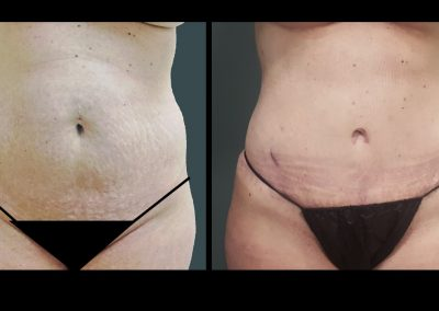 Tummy Tuck with Liposuction to Abdomen and Flanks