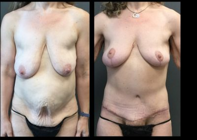 Breast Lift, Tummy Tuck and Lower Body Lift After Massive Weight Loss