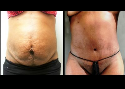 Tummy Tuck with Circumferential Liposuction