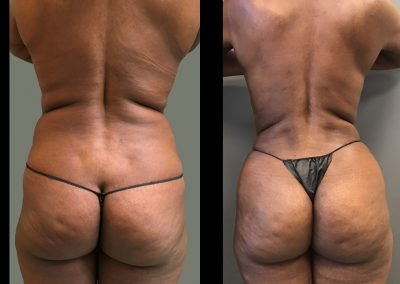 Tummy Tuck, Liposuction to trunk and Fat Grafting to Buttocks (BBL)