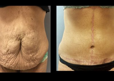 Tummy Tuck After Massive Weight Loss