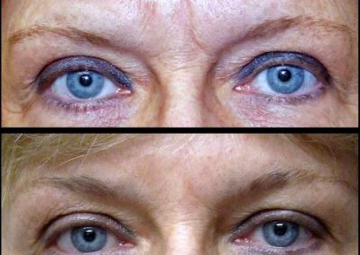 Botox & Fillers to Glabella