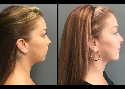 Chin Augmentation and Liposuction to Neck