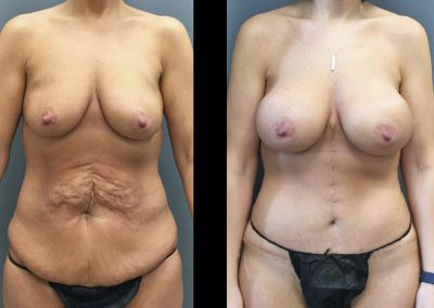 Mommy Makeover after Massive Weight Loss