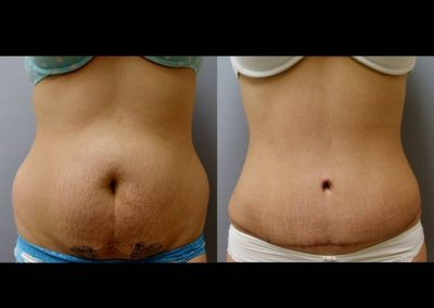 Tummy Tuck and Circumferential Liposuction