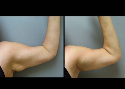Limited Incision Arm Lift