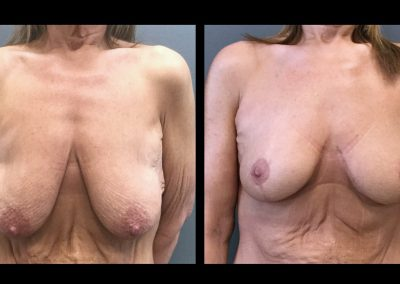 Breast lift after massive weight loss