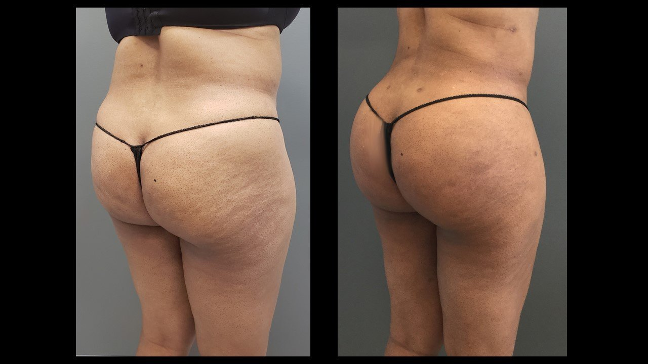 Before and after for BBL, Brazilian butt lift