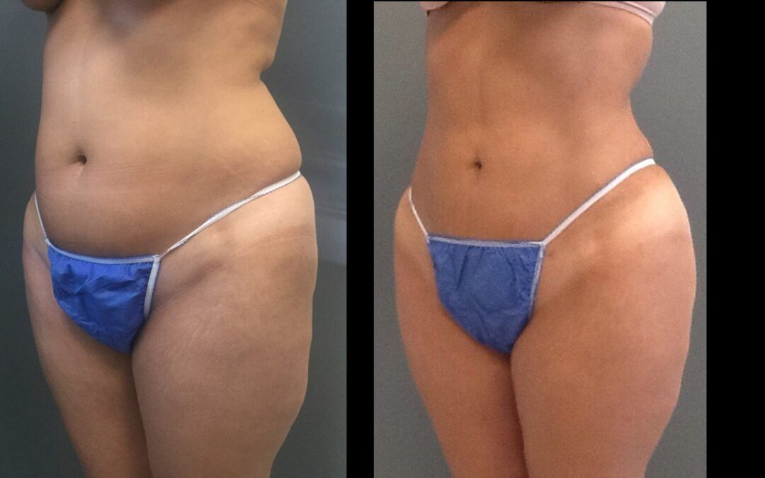 The Brazilian Buttock Lift Revisited